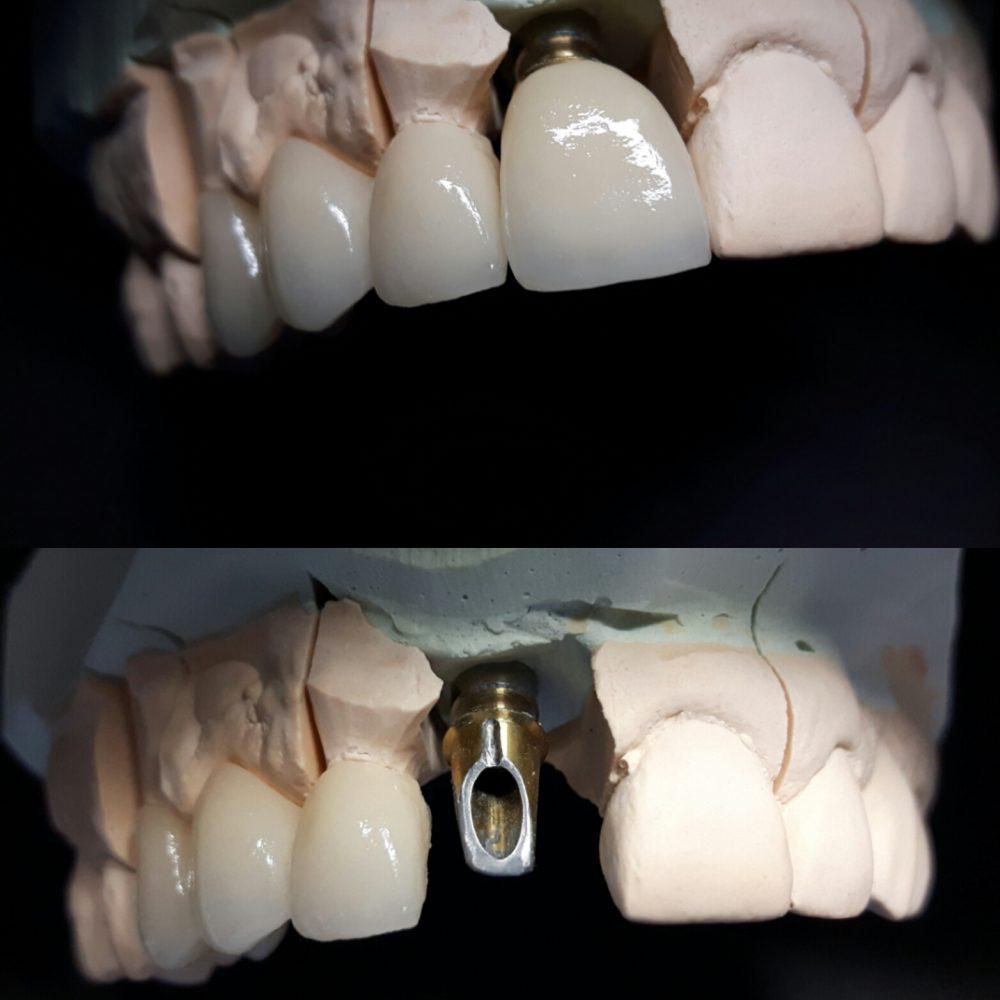 Implanty 2