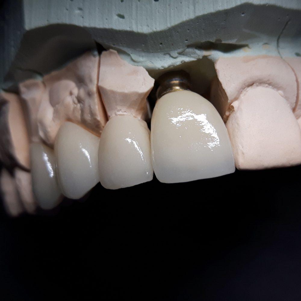 Implanty 3