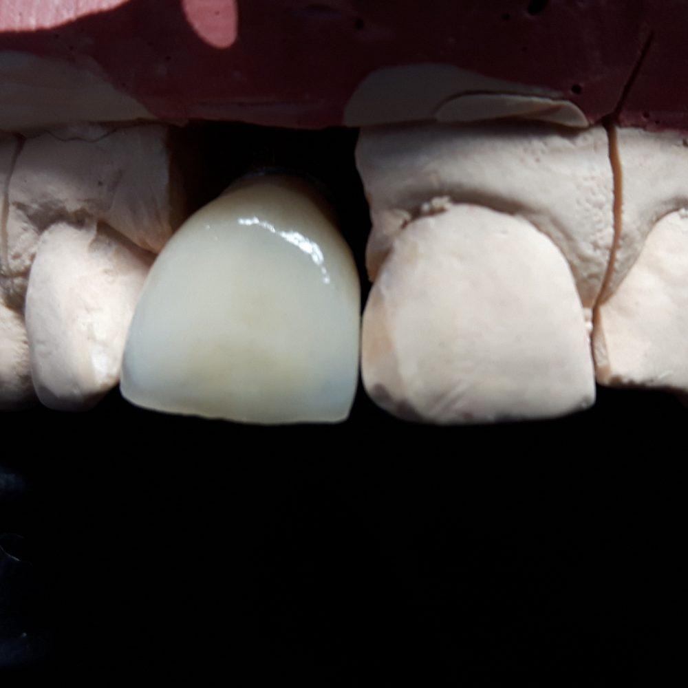 Implanty 4